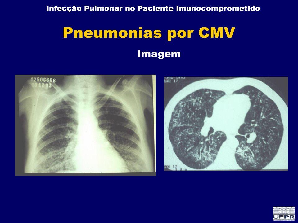 Infecção Pulmonar no Paciente Imunocomprometido Pneumonias por CMV Imagem