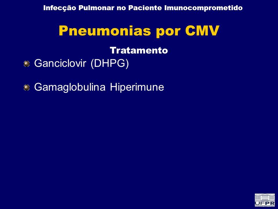 Infecção Pulmonar no Paciente Imunocomprometido Ganciclovir (DHPG) Gamaglobulina Hiperimune Pneumonias por CMV Tratamento