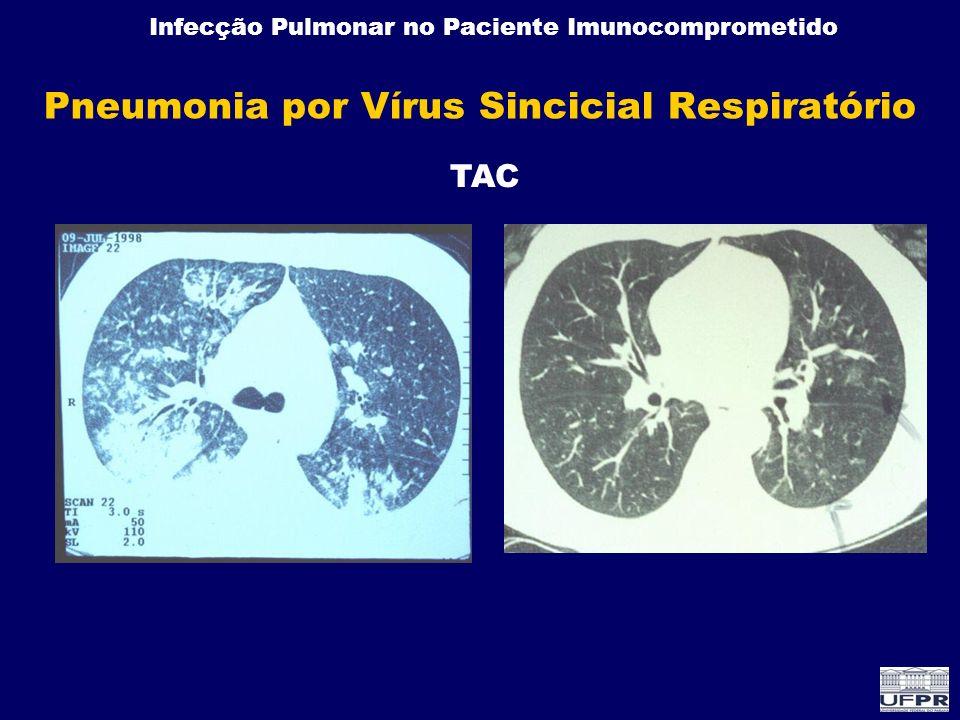Infecção Pulmonar no Paciente Imunocomprometido Pneumonia por Vírus Sincicial Respiratório TAC