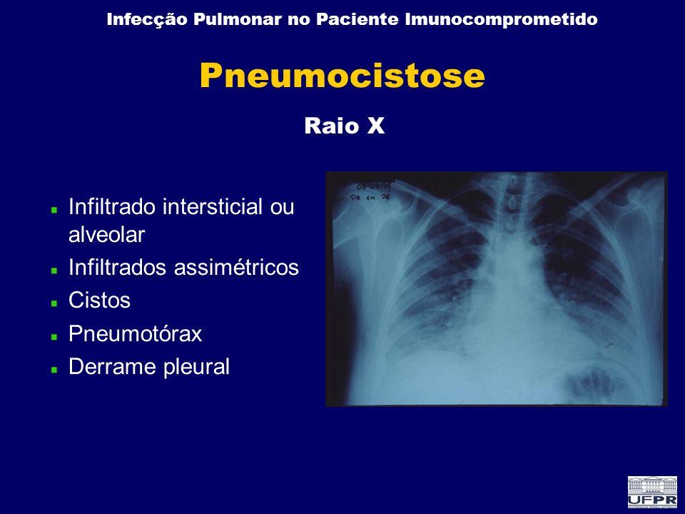 Infecção Pulmonar no Paciente Imunocomprometido Pneumocistose Infiltrado intersticial ou alveolar Infiltrados assimétricos Cistos Pneumotórax Derrame