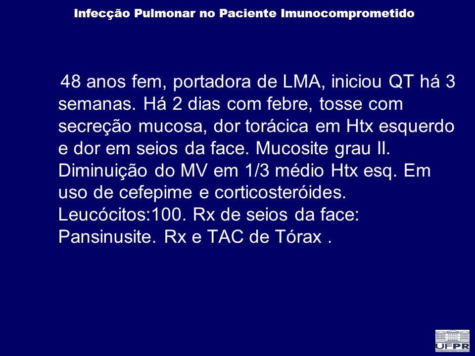 Infecção Pulmonar no Paciente Imunocomprometido 48 anos fem, portadora de LMA, iniciou QT há 3 semanas. Há 2 dias com febre, tosse com secreção mucosa