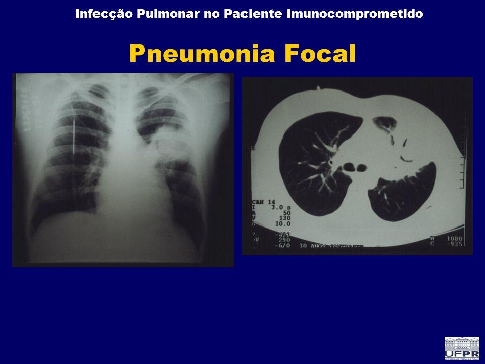 Infecção Pulmonar no Paciente Imunocomprometido Pneumonia Focal