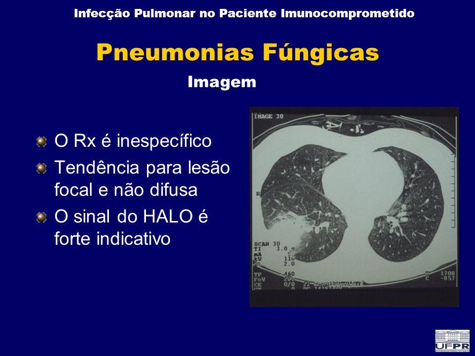 Infecção Pulmonar no Paciente Imunocomprometido Pneumonias Fúngicas O Rx é inespecífico Tendência para lesão focal e não difusa O sinal do HALO é fort