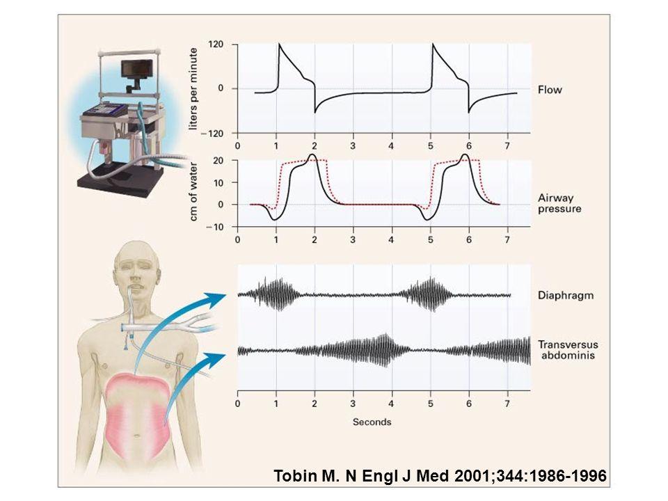Tobin M. N Engl J Med 2001;344:1986-1996