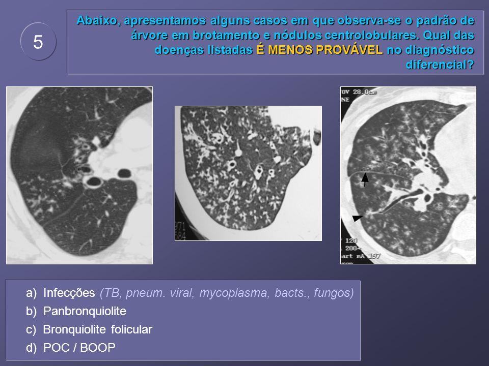 Abaixo, apresentamos alguns casos em que observa-se o padrão de árvore em brotamento e nódulos centrolobulares. Qual das doenças listadas É MENOS PROV