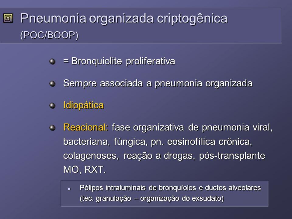 = Bronquiolite proliferativa Sempre associada a pneumonia organizada Idiopática Reacional: fase organizativa de pneumonia viral, bacteriana, fúngica,