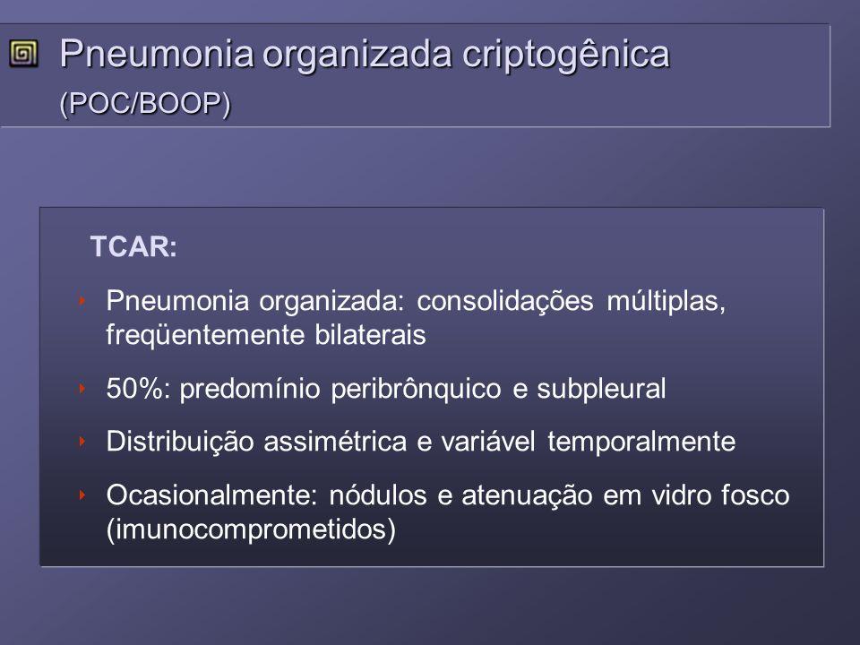 TCAR: Pneumonia organizada: consolidações múltiplas, freqüentemente bilaterais 50%: predomínio peribrônquico e subpleural Distribuição assimétrica e v