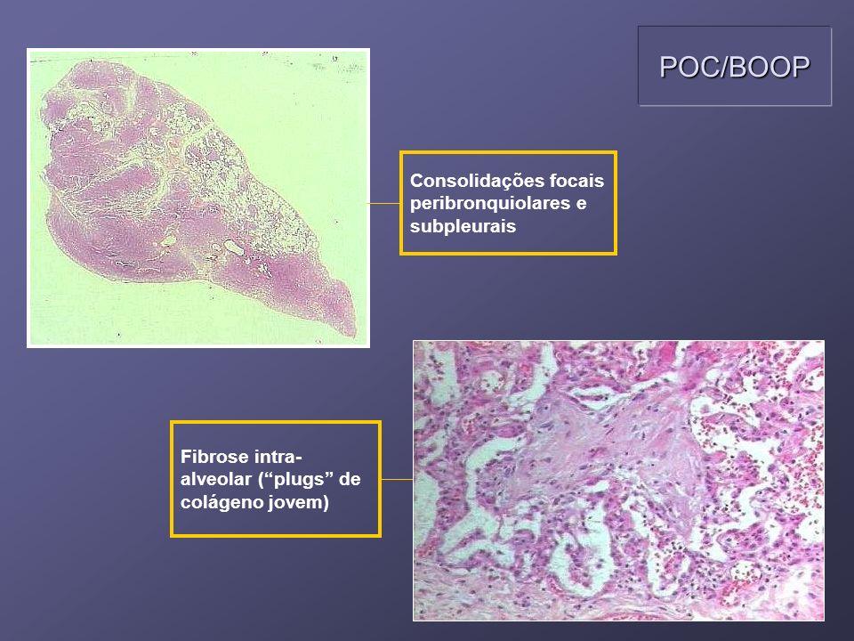 Consolidações focais peribronquiolares e subpleurais Fibrose intra- alveolar (plugs de colágeno jovem) POC/BOOP