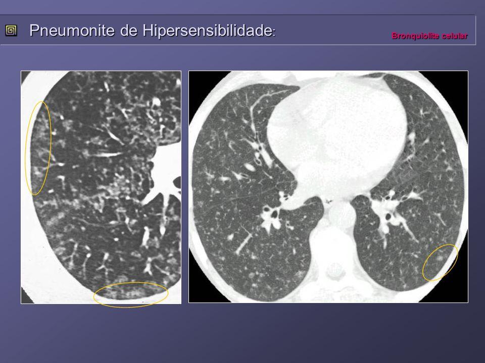 Pneumonite de Hipersensibilidade : Bronquiolite celular