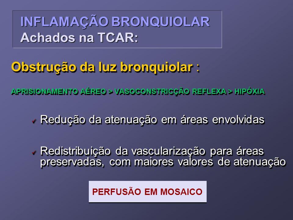 Obstrução da luz bronquiolar : APRISIONAMENTO AÉREO > VASOCONSTRICÇÃO REFLEXA > HIPÓXIA Redução da atenuação em áreas envolvidas Redução da atenuação