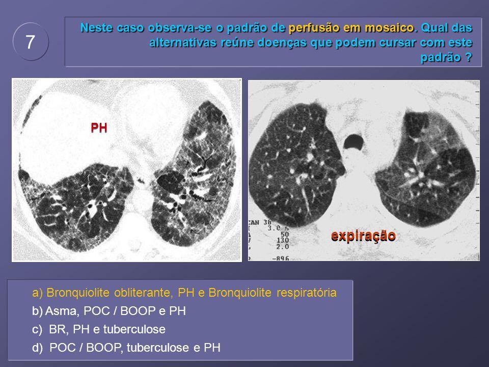 Neste caso observa-se o padrão de perfusão em mosaico. Qual das alternativas reúne doenças que podem cursar com este padrão ? 7 a) Bronquiolite oblite