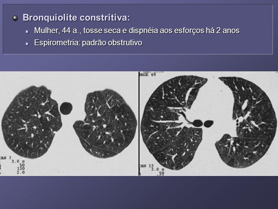 Bronquiolite constritiva: Bronquiolite constritiva: Mulher, 44 a., tosse seca e dispnéia aos esforços há 2 anos Mulher, 44 a., tosse seca e dispnéia a
