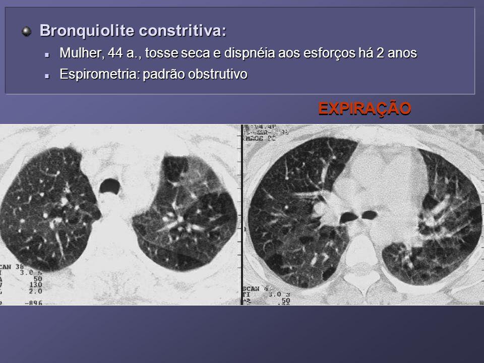 EXPIRAÇÃO Bronquiolite constritiva: Bronquiolite constritiva: Mulher, 44 a., tosse seca e dispnéia aos esforços há 2 anos Mulher, 44 a., tosse seca e