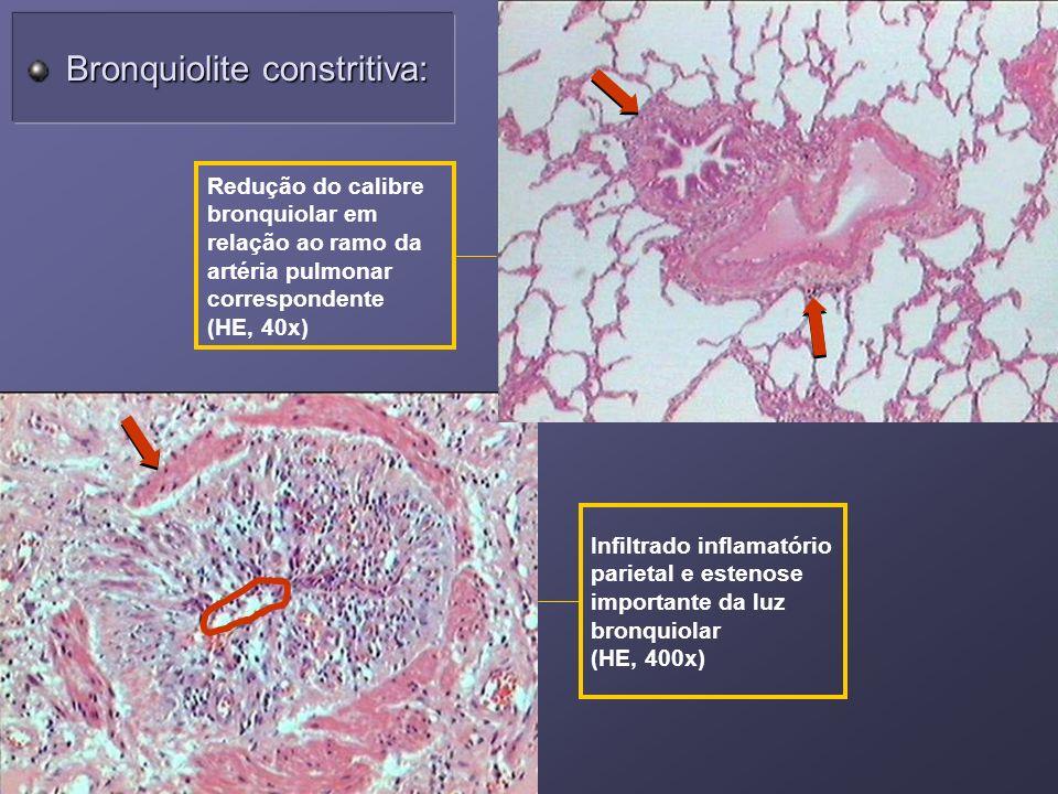 Redução do calibre bronquiolar em relação ao ramo da artéria pulmonar correspondente (HE, 40x) Infiltrado inflamatório parietal e estenose importante