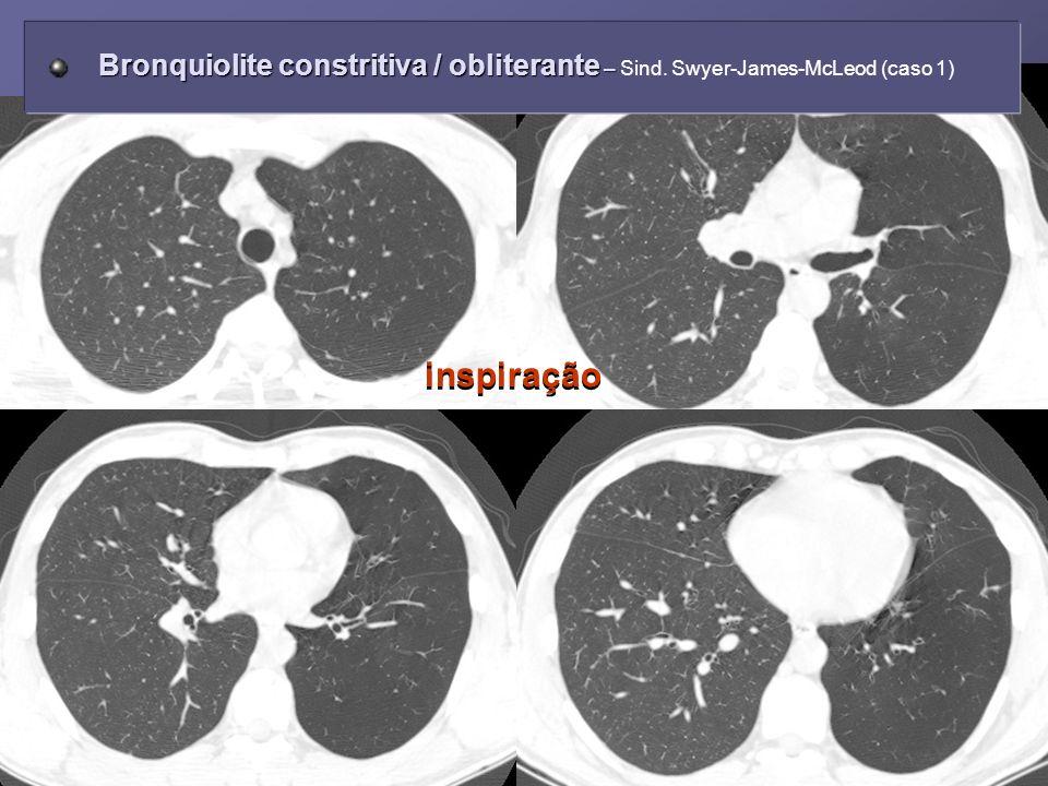 inspiração Bronquiolite constritiva / obliterante – Bronquiolite constritiva / obliterante – Sind. Swyer-James-McLeod (caso 1)