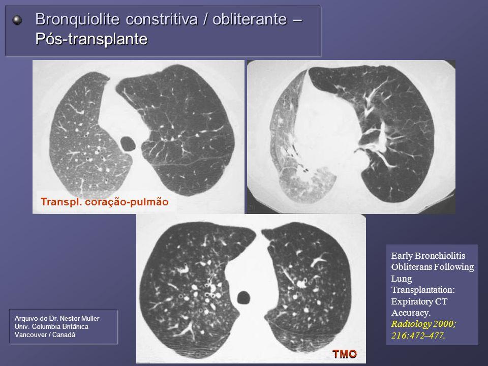 Bronquiolite constritiva / obliterante – Pós-transplante TMO Transpl. coração-pulmão Arquivo do Dr. Nestor Muller Univ. Columbia Britânica Vancouver /