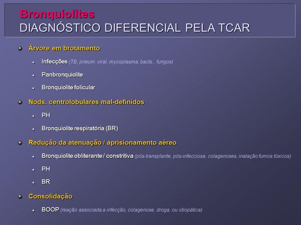 Bronquiolites DIAGNÓSTICO DIFERENCIAL PELA TCAR Árvore em brotamento Infecções Infecções (TB, pneum. viral, mycoplasma, bacts., fungos) Panbronquiolit