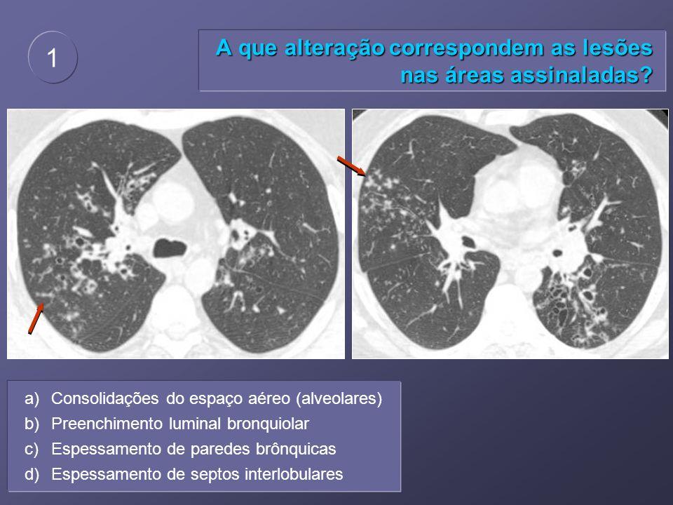 A que alteração correspondem as lesões nas áreas assinaladas? 1 a)Consolidações do espaço aéreo (alveolares) b)Preenchimento luminal bronquiolar c)Esp