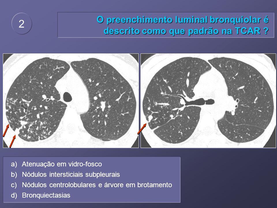 O preenchimento luminal bronquiolar é descrito como que padrão na TCAR ? 2 a)Atenuação em vidro-fosco b)Nódulos intersticiais subpleurais c)Nódulos ce