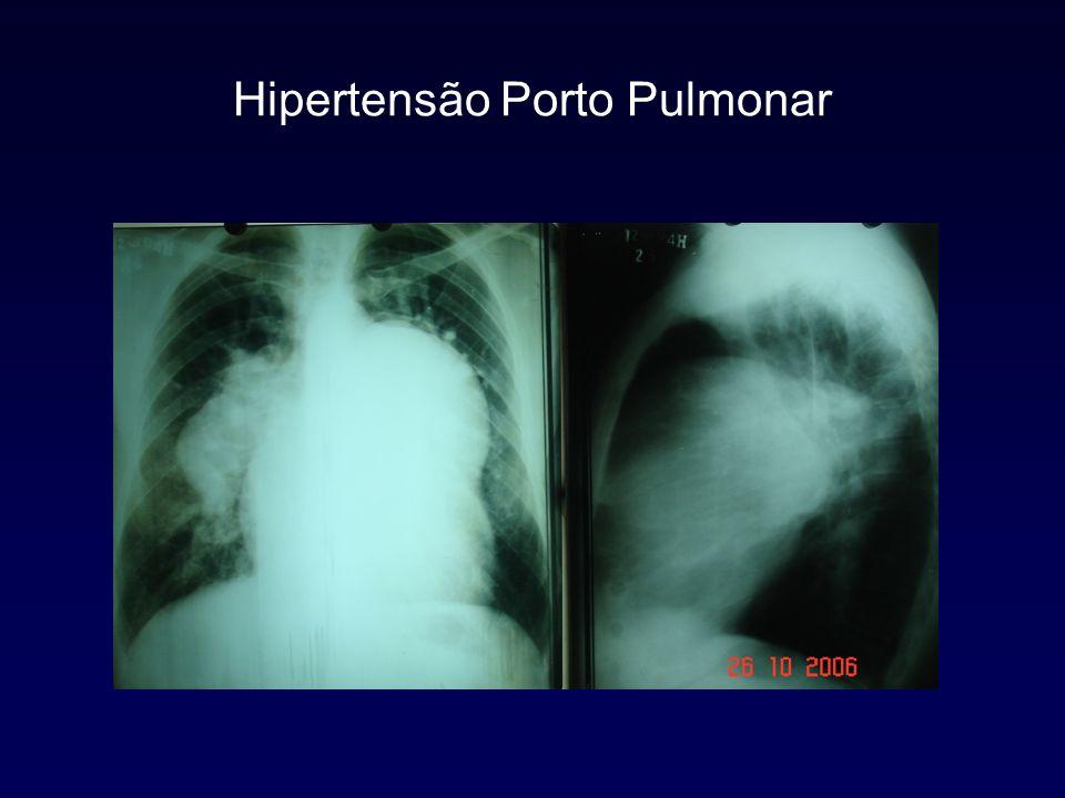 Eletrocardiograma Normal HVD
