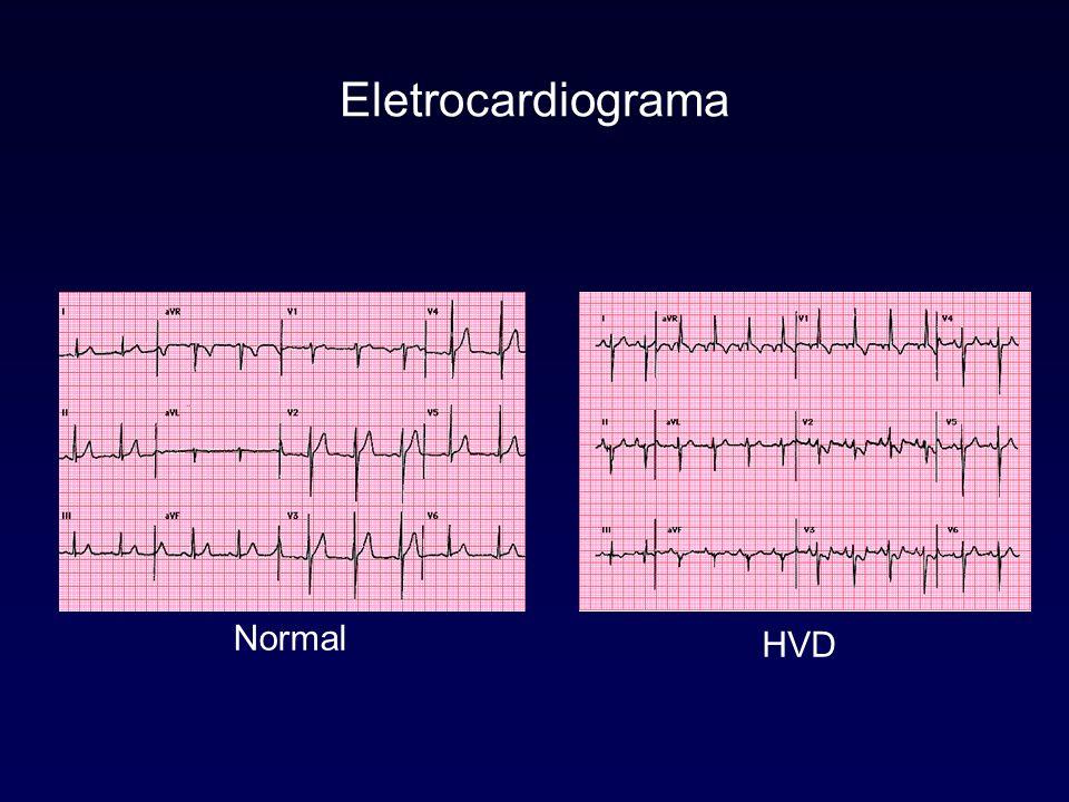 Ecocardiograma Diagnóstico Valor inicial Acompanhamento