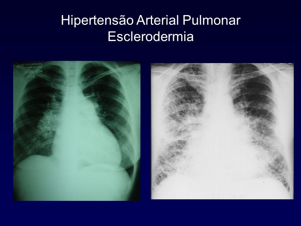 Avaliação Funcional Provas de Função Pulmonar Padrão normal ou pequena restrição (CV > 70%) DLCO frequentemente diminuída Pulmonary function in PPH.