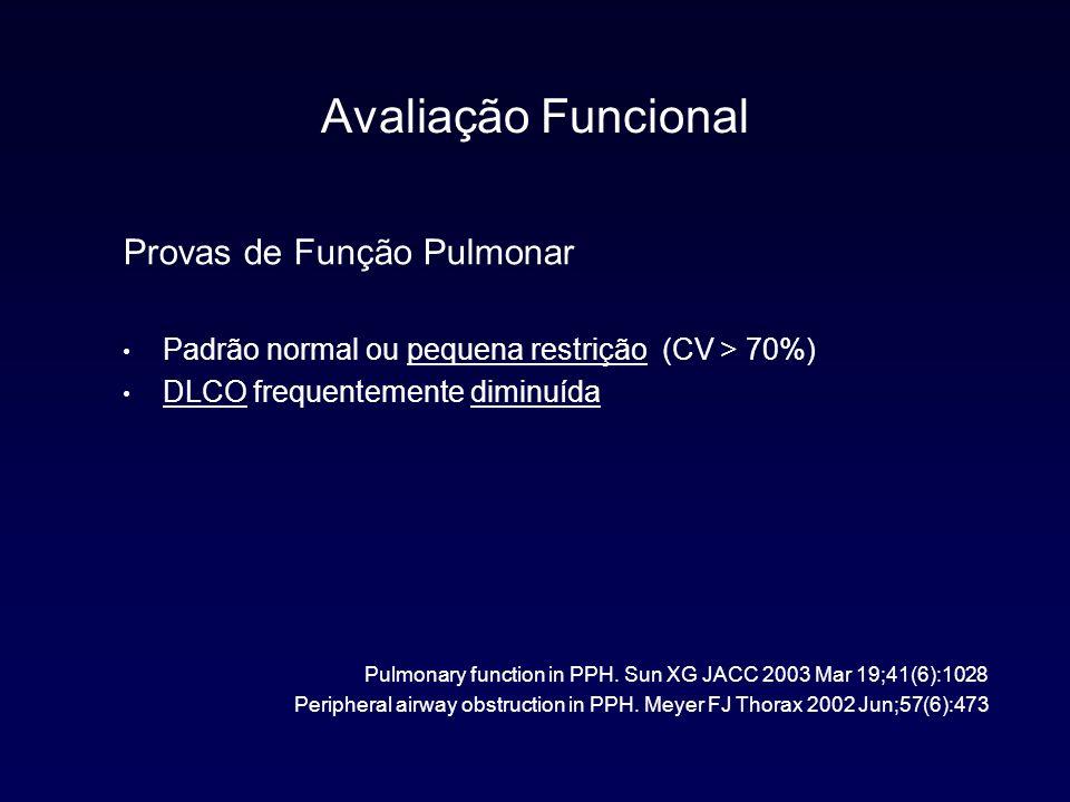 Classificação Diagnóstica 1.Hipertensão Arterial Pulmonar HAP familiar HAP idiopática Associada a: Doenças do colágeno Infecção por HIV Hipertensão porta Drogas e toxinas Cardiopatia congênita Persistência de HP no Neonato 2.HP com cardiopatia esquerda Atrial ou ventricular Valvular 3.HP associada à doenças pulmonares ou hipoxemia DPOC Doença Intersticial Doenças do sono 4.HP causada por trombose crônica ou embolia pulmonar 5.Outras Sarcoidose, Histiocitose X...