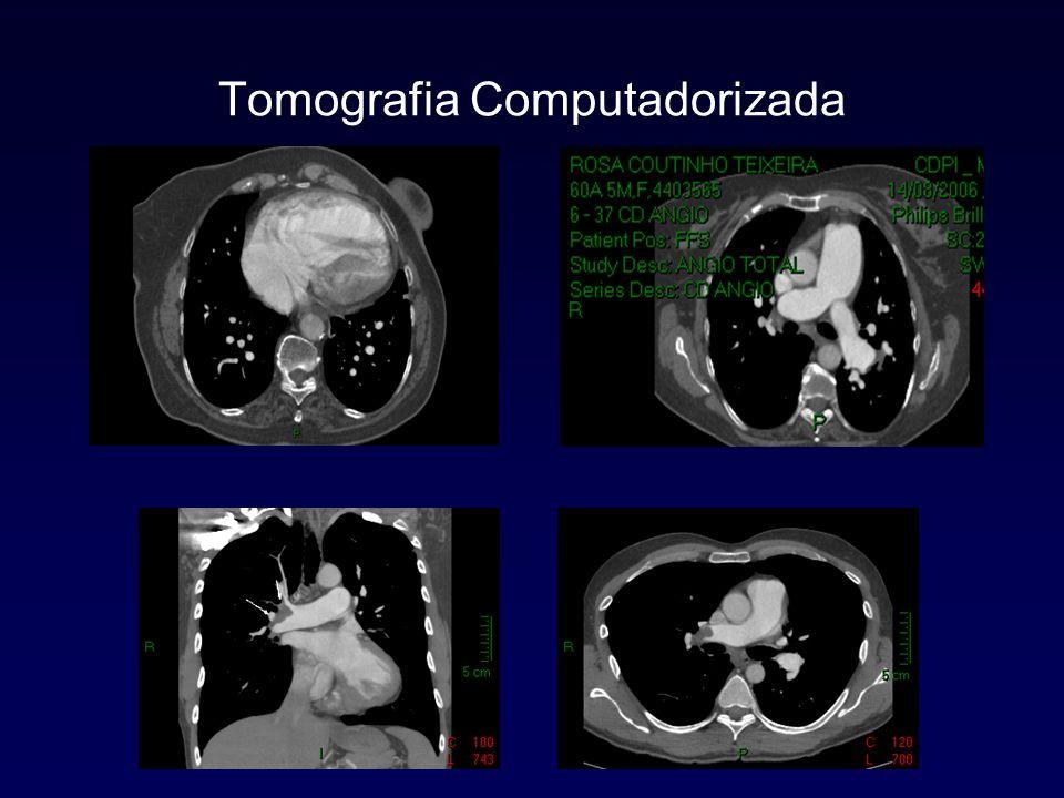 Cateterismo Direito Medidas oxi-hemodinâmicas – Débito Cardíaco – Pressão Arterial Pulmonar (PmAP) – Resistência Vascular Pulmonar – Pressão Átrio Direito – Pressão Capilar Pulmonar – Gasometria (SVO 2 ) Teste de Vasorreatividade