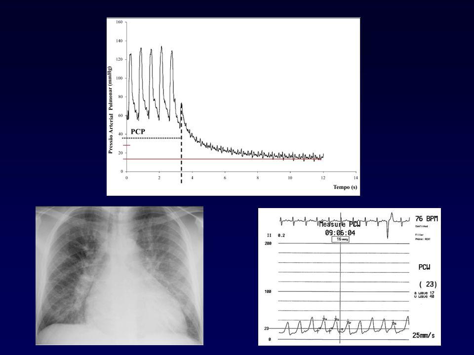 Teste de vasorreatividade (teste agudo de vasodilatação) Óxido Nítrico, Adenosina, Prostaciclina Teste positivo é preditivo da resposta a longo prazo aos vasodilatadores orais (BCC) Resultados se correlacionam com a sobrevida