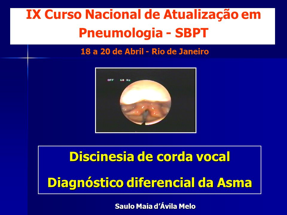 IX Curso Nacional de Atualização em Pneumologia - SBPT 18 a 20 de Abril - Rio de Janeiro Discinesia de corda vocal Diagnóstico diferencial da Asma Sau