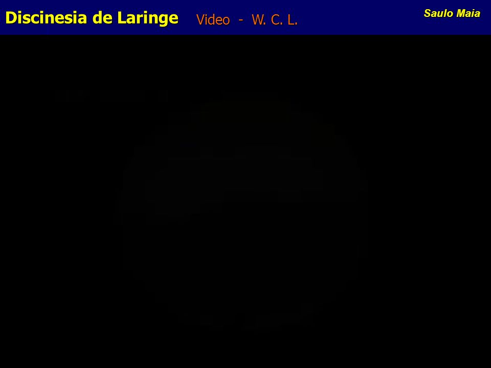 Video - W. C. L. Discinesia de Laringe Saulo Maia