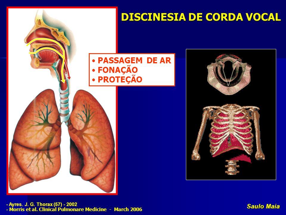 Saulo Maia DISCINESIA DE CORDA VOCAL Limitação do fluxo aéreo à nível da laringe INSPIRATÓRIO Limitação do fluxo aéreo pulmonar EXPIRATÓRIO - Ayres.