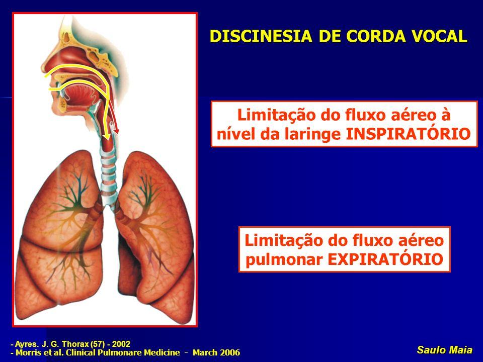 Saulo Maia DISCINESIA DE CORDA VOCAL Limitação do fluxo aéreo à nível da laringe INSPIRATÓRIO Limitação do fluxo aéreo pulmonar EXPIRATÓRIO - Ayres. J