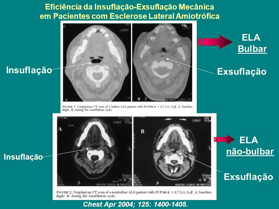 Eficiência da Insuflação-Exsuflação Mecânica em Pacientes com Esclerose Lateral Amiotrófica Chest Apr 2004; 125: 1400-1405. Insuflação Exsuflação Insu