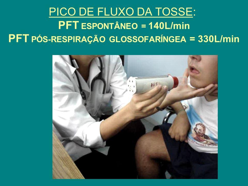 PICO DE FLUXO DA TOSSE: PFT ESPONTÂNEO = 140L/min PFT PÓS-RESPIRAÇÃO GLOSSOFARÍNGEA = 330L/min