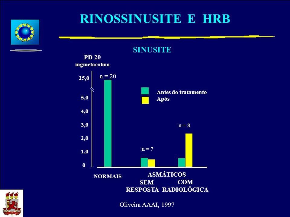 RINOSSINUSITE E HRB 5,0 4,0 3,0 2,0 1,0 0 25,0 NORMAIS ASMÁTICOS SEM COM RESPOSTA RADIOLÓGICA Antes do tratamento Após PD 20 mgmetacolina n = 7 SINUSI