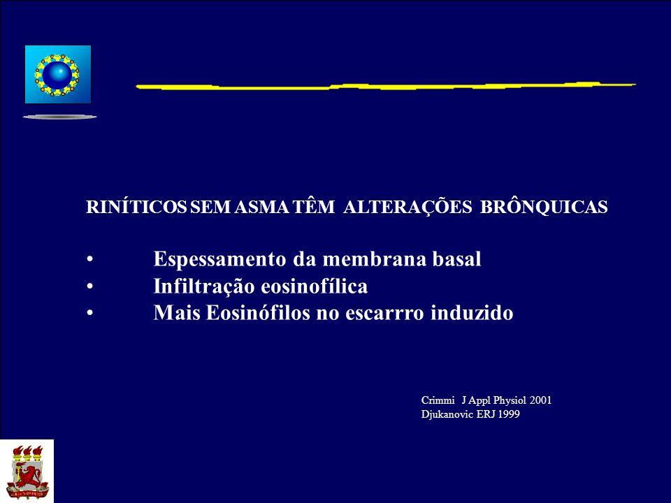 RINÍTICOS SEM ASMA TÊM ALTERAÇÕES BRÔNQUICAS Espessamento da membrana basal Infiltração eosinofílica Mais Eosinófilos no escarrro induzido Crimmi J Ap