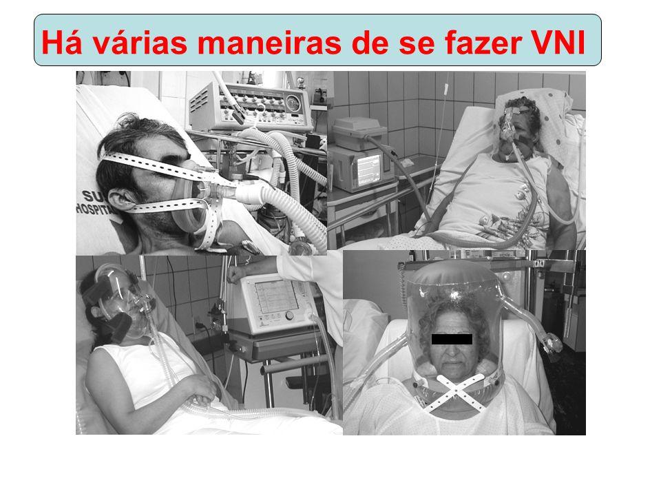 VNI – Estudo da performance de interfaces Estudos in vitro – modelos mecânicos Estudos em voluntários sadios ou pacientes estáveis Estudos no cenário clínico de IRA