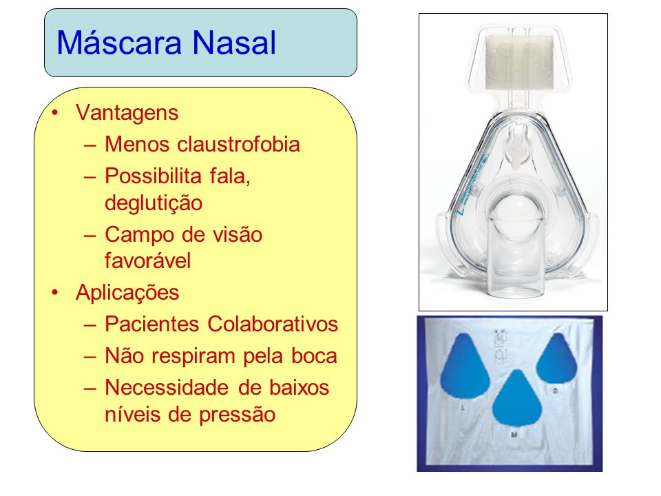 Máscara Nasal Vantagens –Menos claustrofobia –Possibilita fala, deglutição –Campo de visão favorável Aplicações –Pacientes Colaborativos –Não respiram pela boca –Necessidade de baixos níveis de pressão