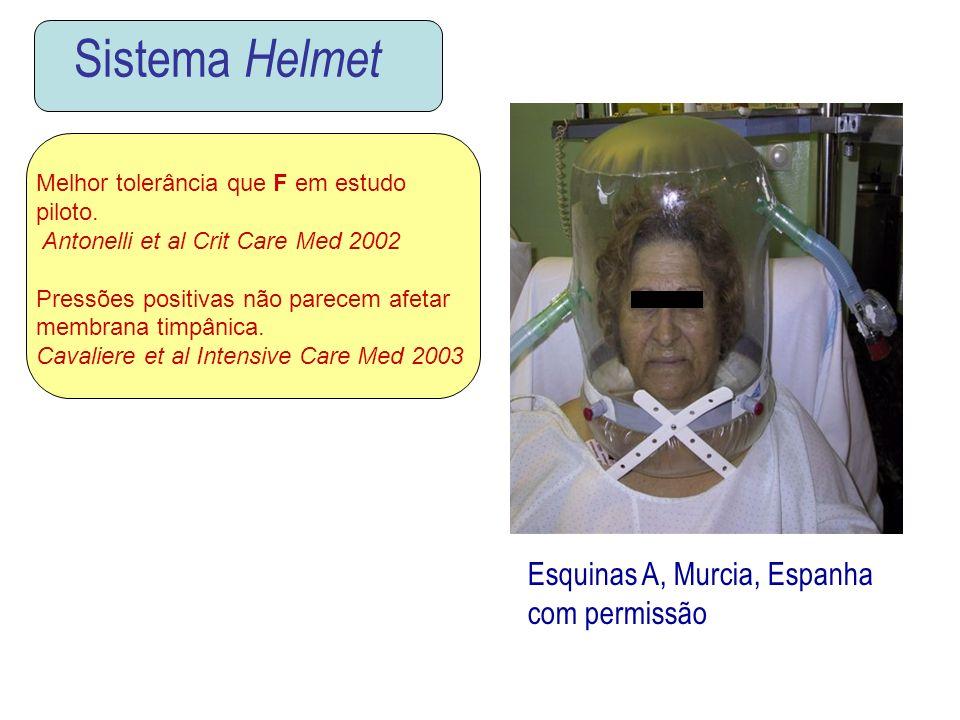 Sistema Helmet Esquinas A, Murcia, Espanha com permissão Melhor tolerância que F em estudo piloto. Antonelli et al Crit Care Med 2002 Pressões positiv