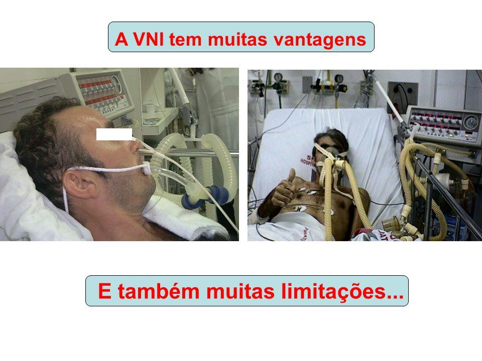 A VNI tem muitas vantagens E também muitas limitações...