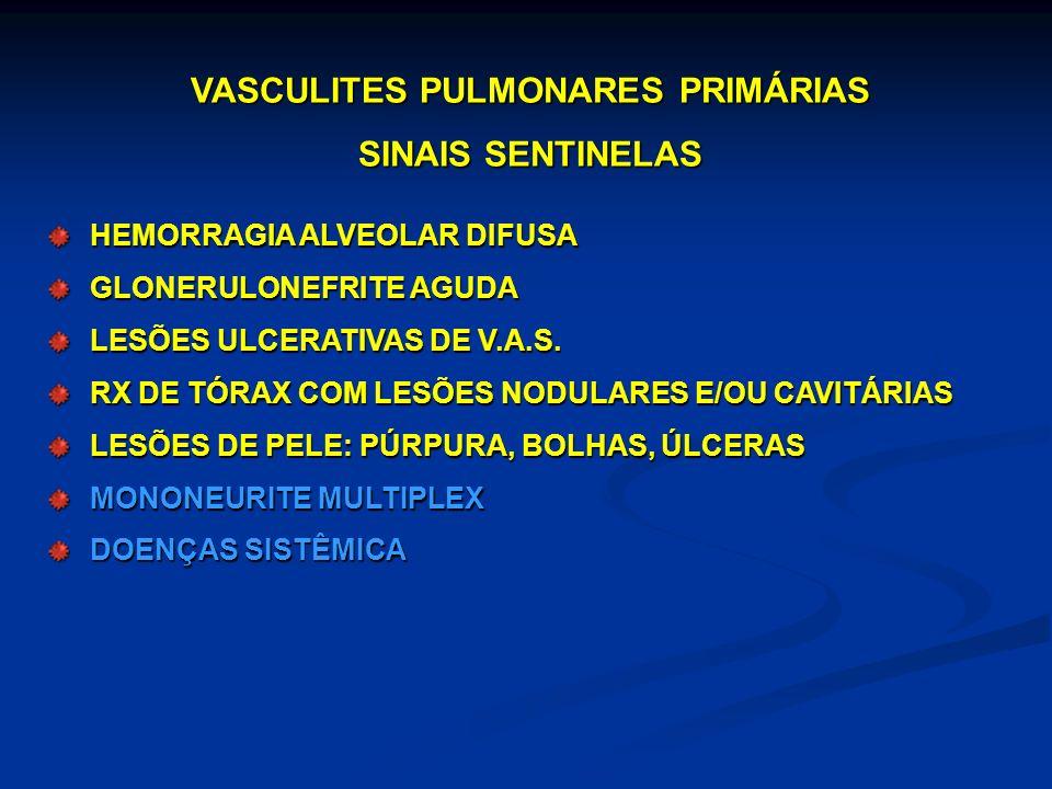 VASCULITES PULMONARES PRIMÁRIAS SINAIS SENTINELAS HEMORRAGIA ALVEOLAR DIFUSA GLONERULONEFRITE AGUDA LESÕES ULCERATIVAS DE V.A.S. RX DE TÓRAX COM LESÕE