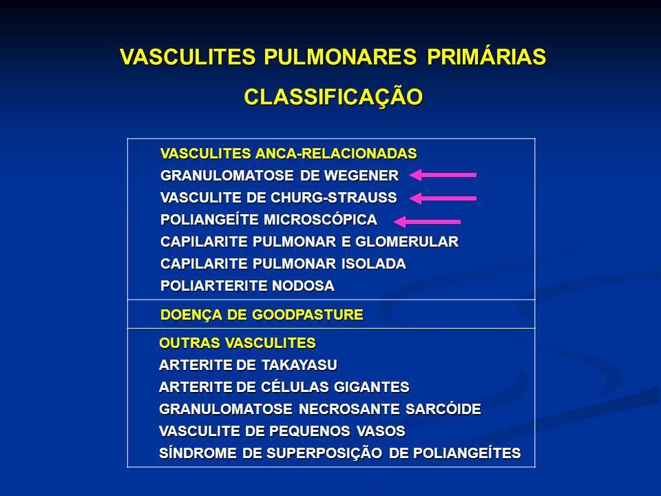 VASCULITES ANCA-RELACIONADAS GRANULOMATOSE DE WEGENER VASCULITE DE CHURG-STRAUSS POLIANGEÍTE MICROSCÓPICA CAPILARITE PULMONAR E GLOMERULAR CAPILARITE