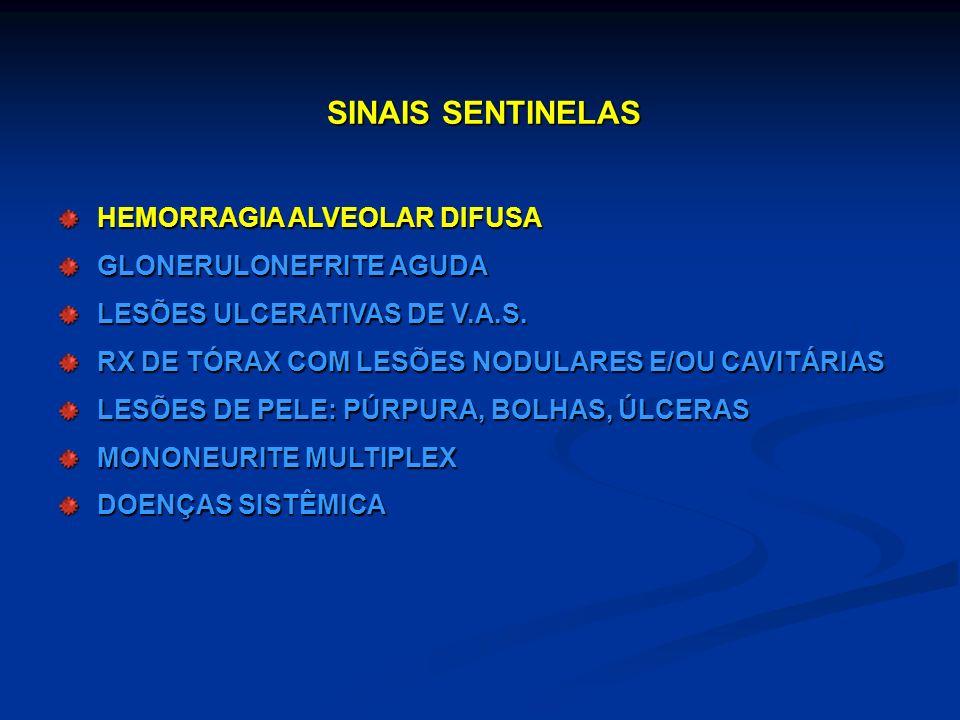 SINAIS SENTINELAS HEMORRAGIA ALVEOLAR DIFUSA GLONERULONEFRITE AGUDA LESÕES ULCERATIVAS DE V.A.S. RX DE TÓRAX COM LESÕES NODULARES E/OU CAVITÁRIAS LESÕ