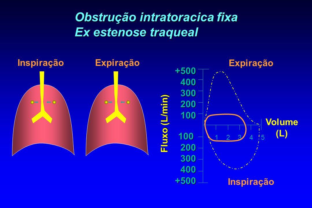 Obstrução intratoracica fixa Ex estenose traqueal ExpiraçãoInspiração 1 2 3 4 5 Fluxo (L/min) Volume (L) Expiração Inspiração +500400300200100 1002003