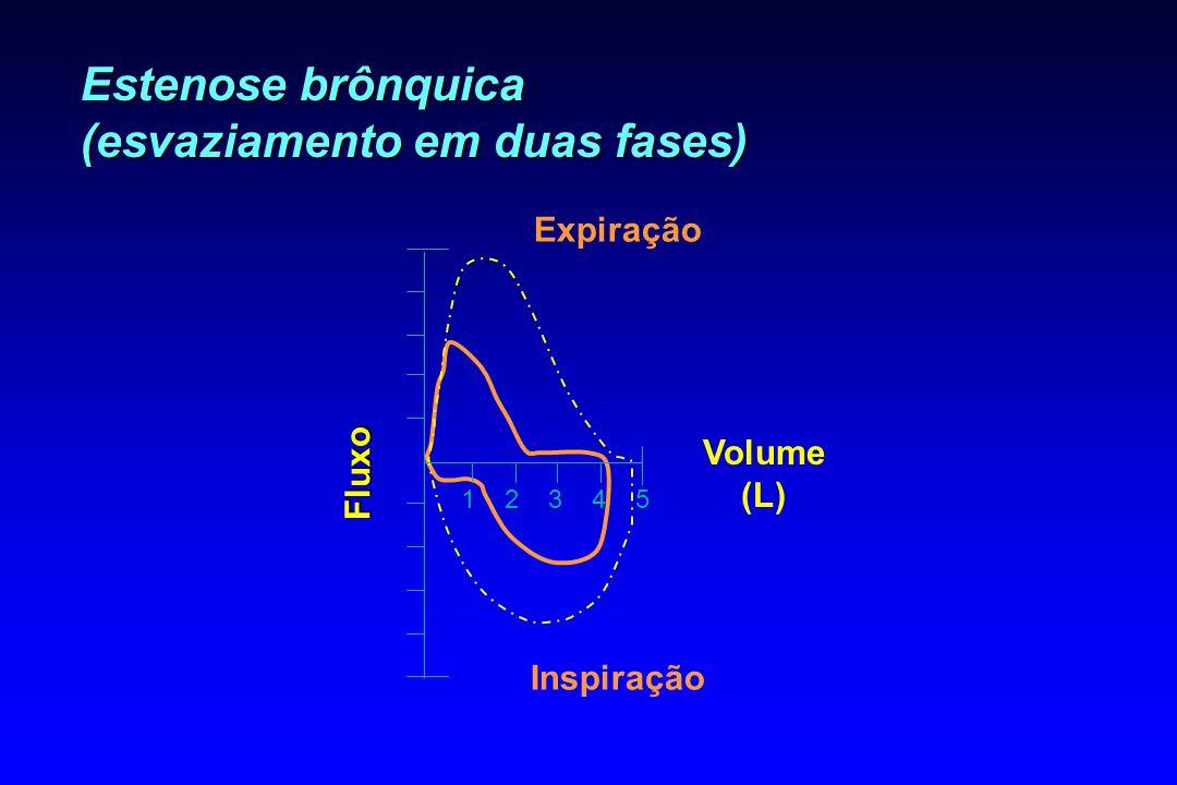 Estenose brônquica (esvaziamento em duas fases) Fluxo Volume (L) Expiração Inspiração 1 2 3 4 5