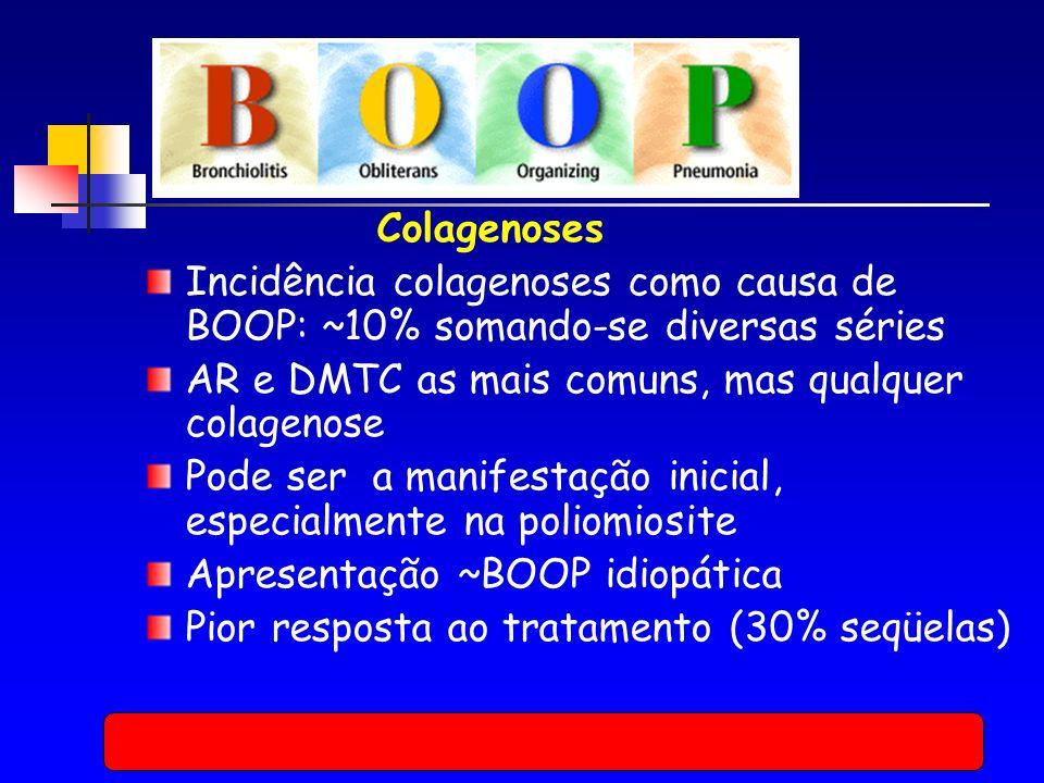 Colagenoses Incidência colagenoses como causa de BOOP: ~10% somando-se diversas séries AR e DMTC as mais comuns, mas qualquer colagenose Pode ser a manifestação inicial, especialmente na poliomiosite Apresentação ~BOOP idiopática Pior resposta ao tratamento (30% seqüelas)