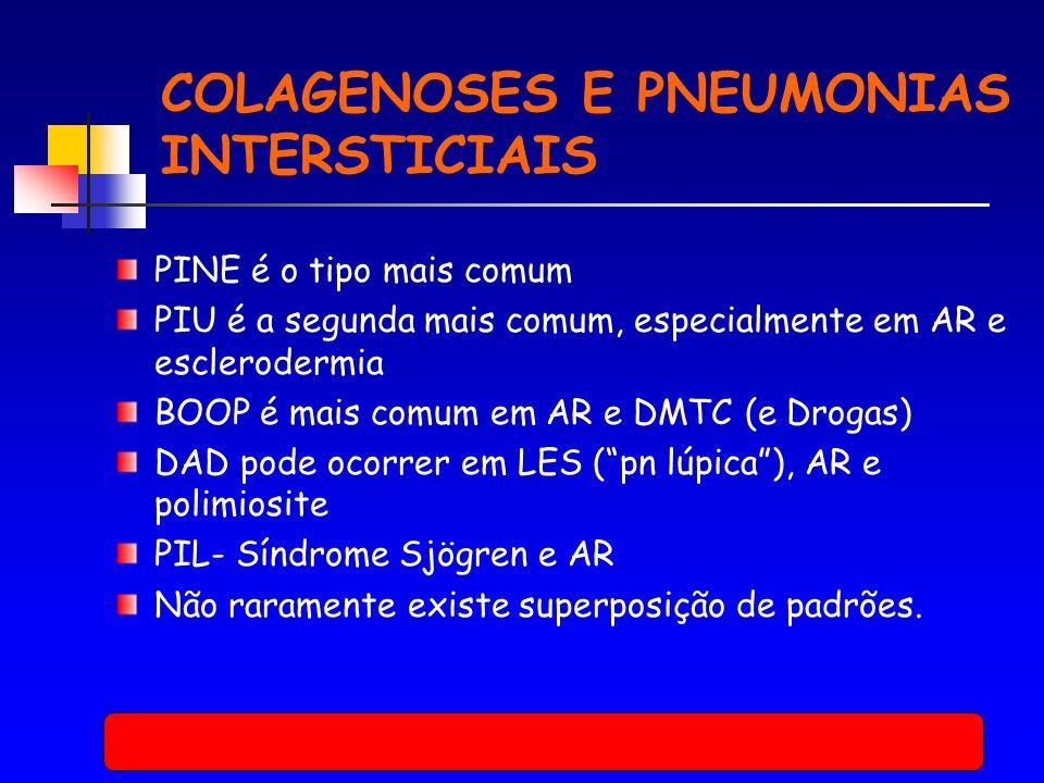 COLAGENOSES E PNEUMONIAS INTERSTICIAIS PINE é o tipo mais comum PIU é a segunda mais comum, especialmente em AR e esclerodermia BOOP é mais comum em AR e DMTC (e Drogas) DAD pode ocorrer em LES (pn lúpica), AR e polimiosite PIL- Síndrome Sjögren e AR Não raramente existe superposição de padrões.