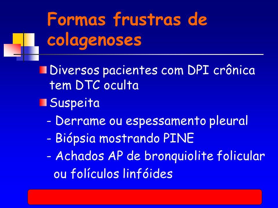 Formas frustras de colagenoses Diversos pacientes com DPI crônica tem DTC oculta Suspeita - Derrame ou espessamento pleural - Biópsia mostrando PINE - Achados AP de bronquiolite folicular ou folículos linfóides