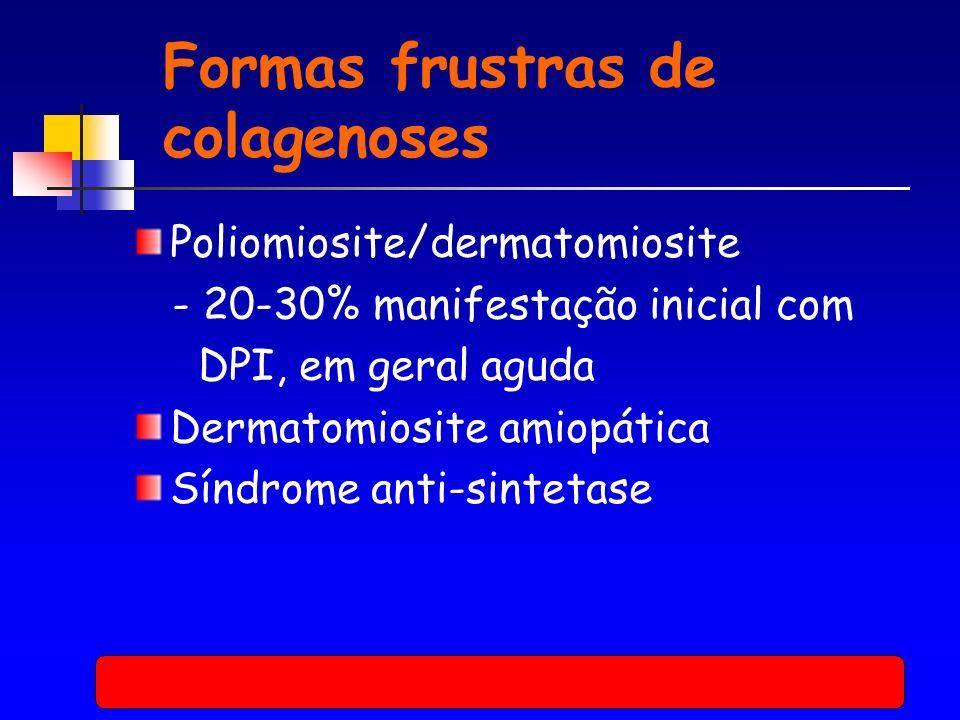 Formas frustras de colagenoses Poliomiosite/dermatomiosite - 20-30% manifestação inicial com DPI, em geral aguda Dermatomiosite amiopática Síndrome anti-sintetase